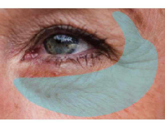 Eyebag Treatment  - Non-surgical treatment for eyebag using microinsulated needle